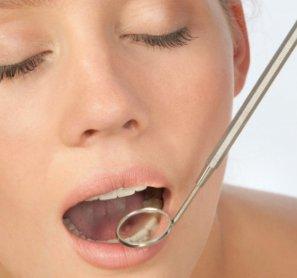 Eliminación de la Placa Dental