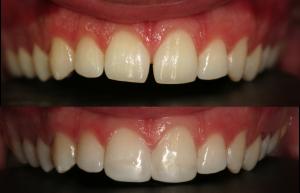 carillas composite antes y después